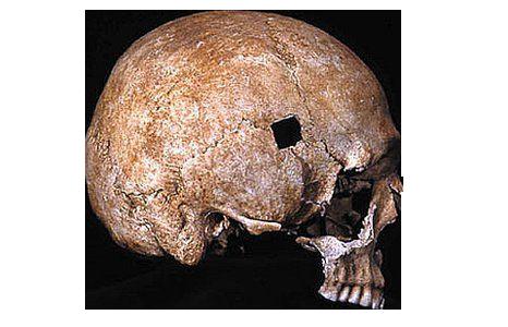 Crâne de Towton Le Bizarreum