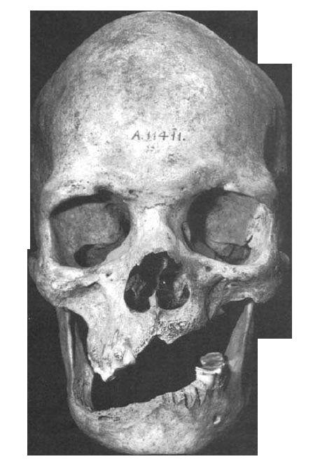 Crâne de Towton