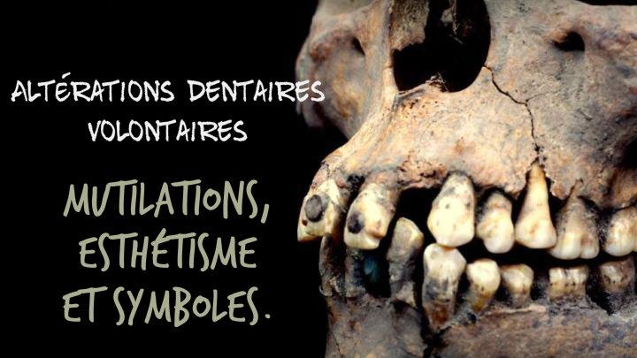 le bizarreum mutilations dentaires archéologie