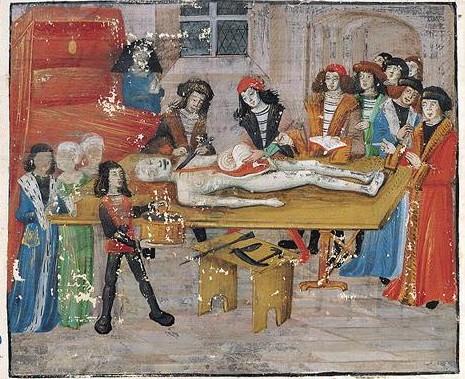 medieval-autopsy-e1375639870675